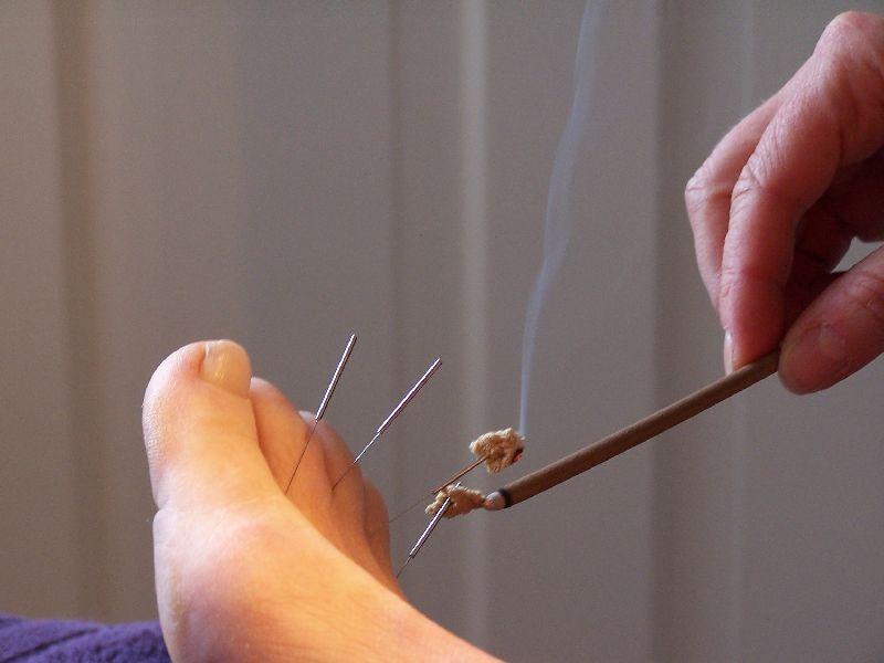 Acupunctuur behandeling met Moxa